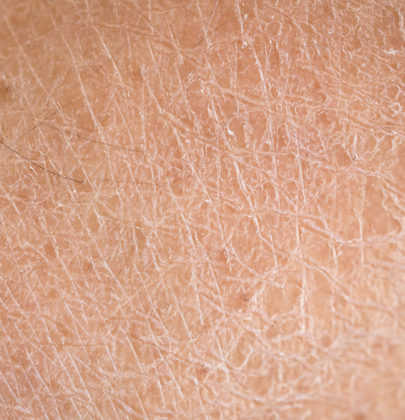 THE DIFFERENCE BETWEEN DRY SKIN AND DEHYDRATED SKIN