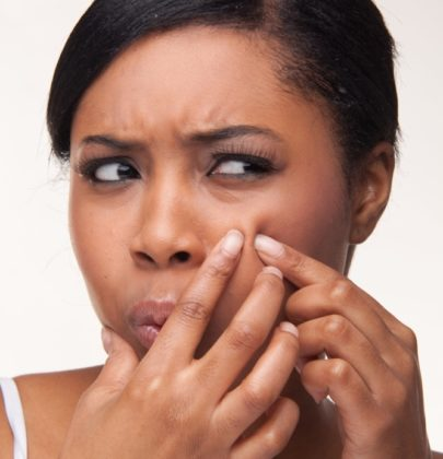 EASY WAYS WOMEN CAN PREVENT ACNE.